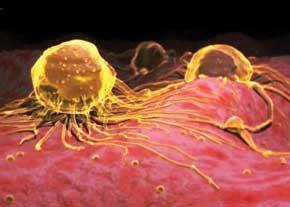 ۱۵ نشانه سرطان را بشناسید