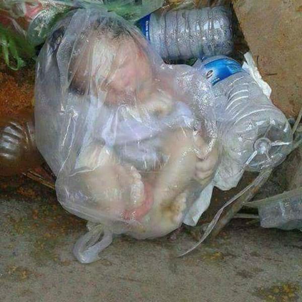 نوزاد انسان در میان زباله های خیابانهای پایتخت.....…